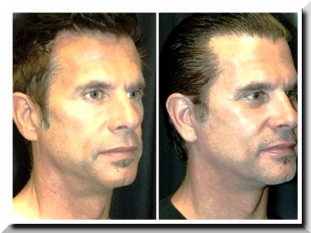 Lorenzo Lamas Plastic Surgery Scandal – Awesome Facelift Work?