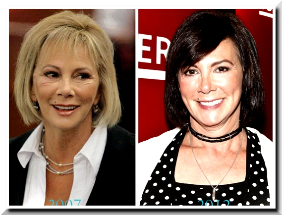 Marcia Clark Scandals on Plastic Surgery – When Knife Work is Worth Anything